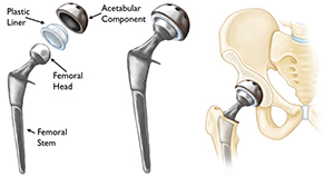 Total Hip Replacement (THR)